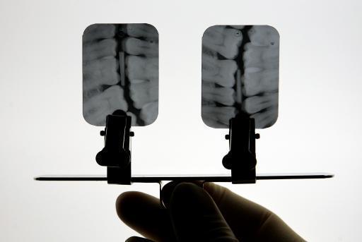A dental nurse examines oral X-rays.